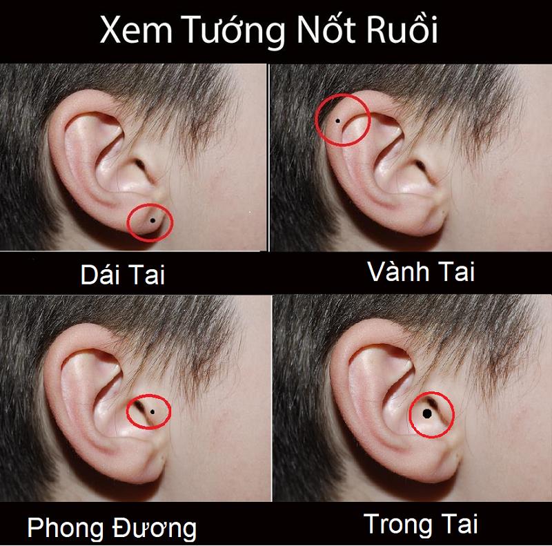 Giải mã vị trí các nốt ruồi ở tai, nốt ruồi ở tai nam giới, nốt ruồi ở tai phụ nữ
