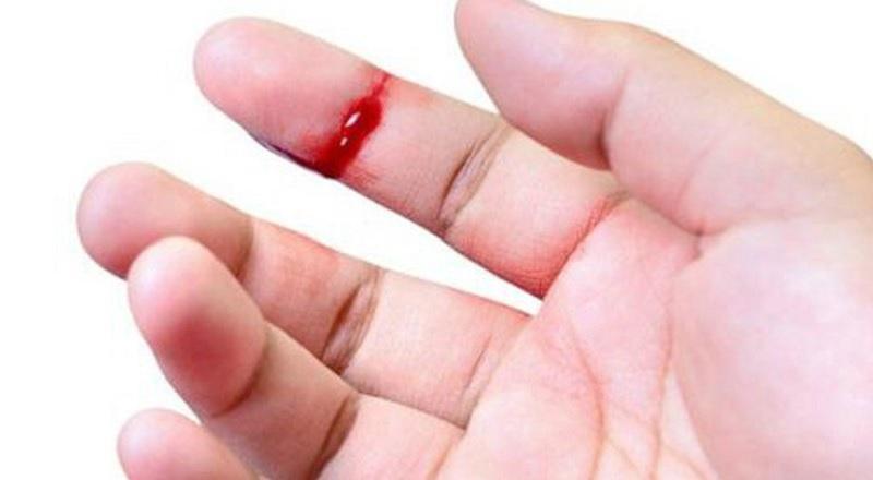 Bà bầu bị đứt tay có sao không? Đứt tay là điềm báo gì?