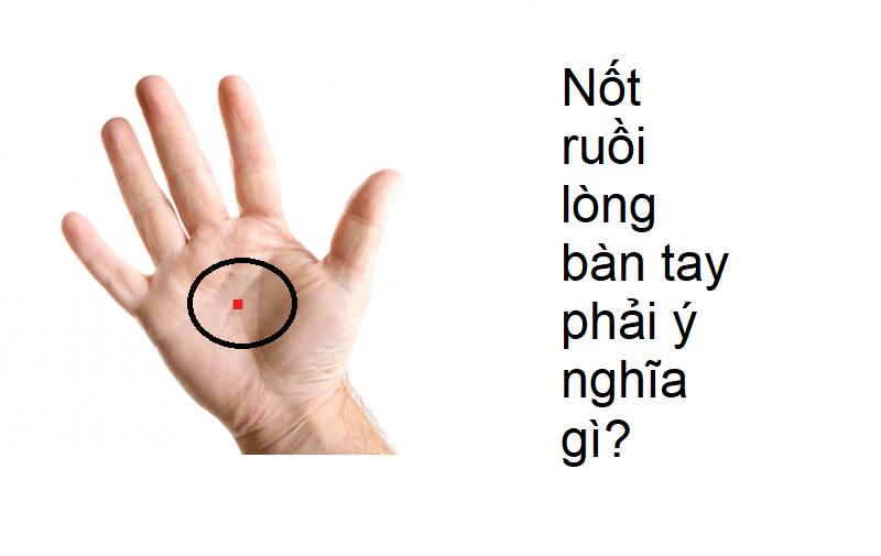 Nốt ruồi trong lòng bàn tay phải ý nghĩa gì?