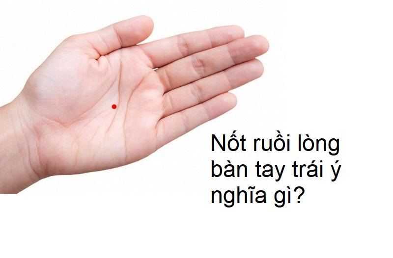 Nốt ruồi trong lòng bàn tay trái ý nghĩa gì?