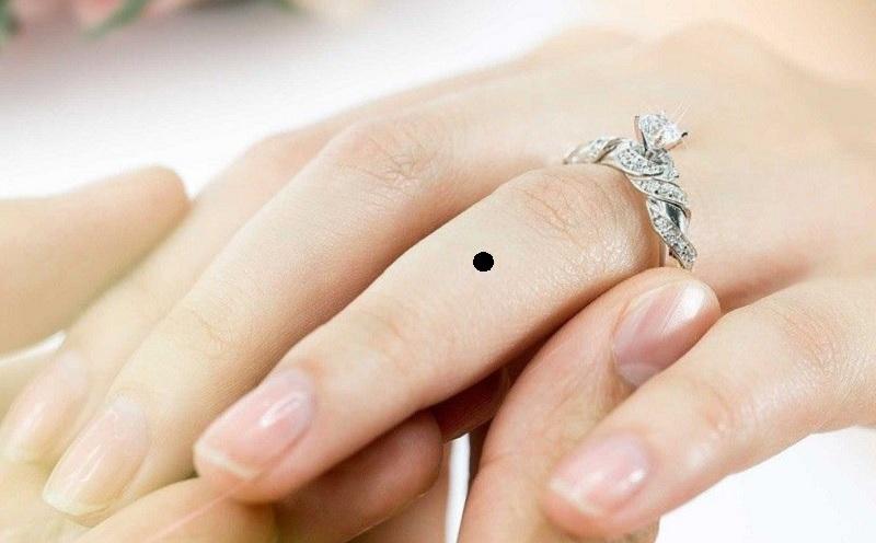 Nốt ruồi ở ngón tay áp út. Nốt ruồi son trên ngón tay đeo nhẫn