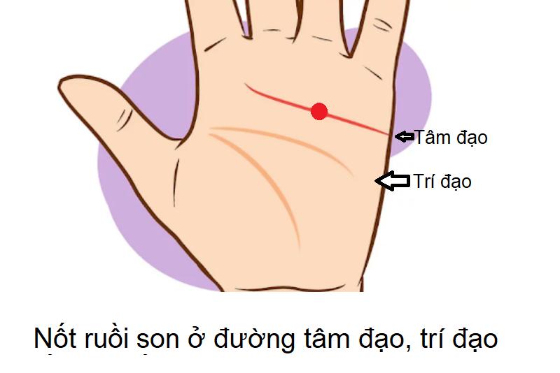 Nốt ruồi son ở tay, nốt ruồi son ở đường trí đạo, tâm đạo