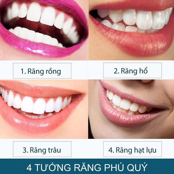 Những loại răng khác theo phong thủy