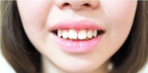 Răng vẩu là người như thế nào?