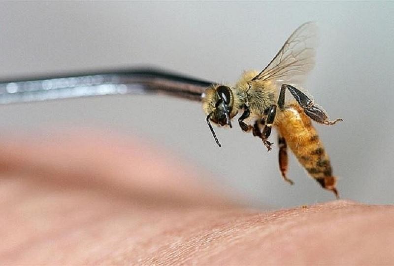 Bị ong đốt là điềm gì? Bị ong đốt bôi gì?