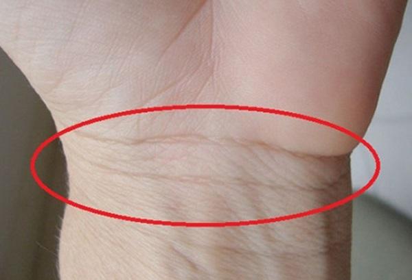 Những đường chỉ tay không nên có, nhiều vân chằng chịt ở cổ tay