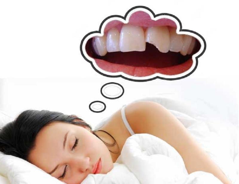 Nằm mơ thấy bị mẻ răng là điềm gì? Mơ thấy sứt răng là điềm gì?