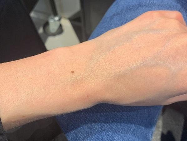 Ý nghĩa nốt ruồi ở cổ tay trái là gì?