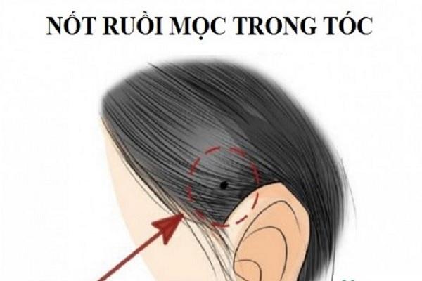 Nốt ruồi trên đâu, nốt ruồi trên đầu trong tóc
