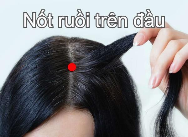 Nốt ruồi trên đầu ý nghĩa gì?