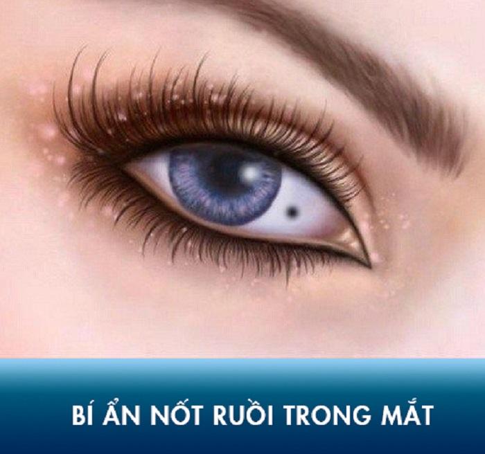 Nốt ruồi trong mắt tốt hay xấu, điềm gì?