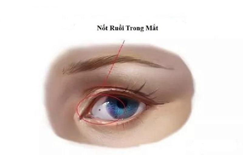 Ý nghĩa nốt ruồi trong mắt trái và mắt phải