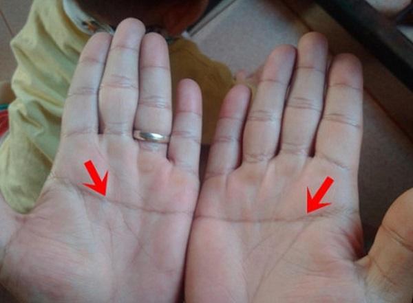 Người có 2 bàn tay chữ nhất