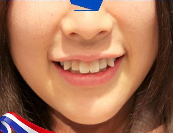 Xem tướng người răng hổ, răng hổ là răng thế nào?
